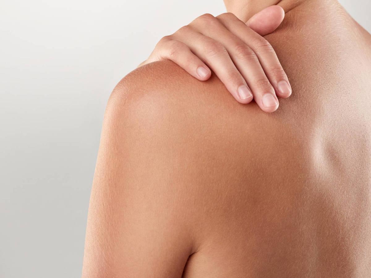 trastornos comunes en la piel