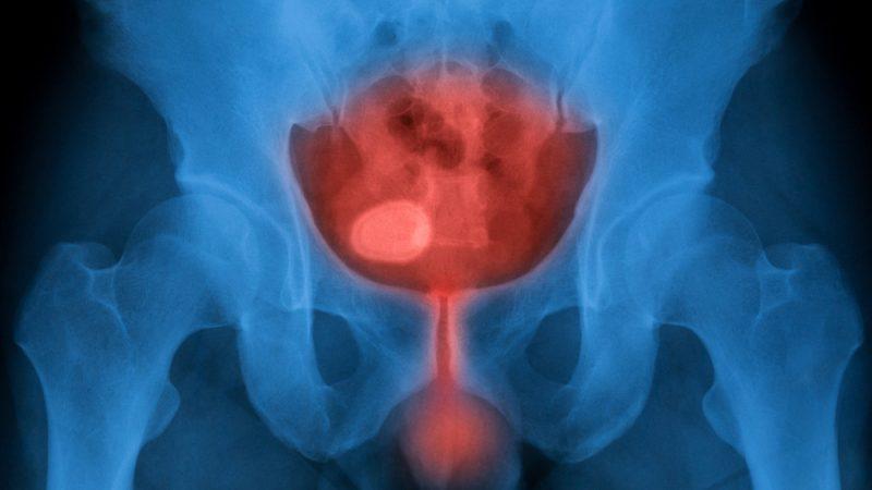Cómo tratar una infección urinaria