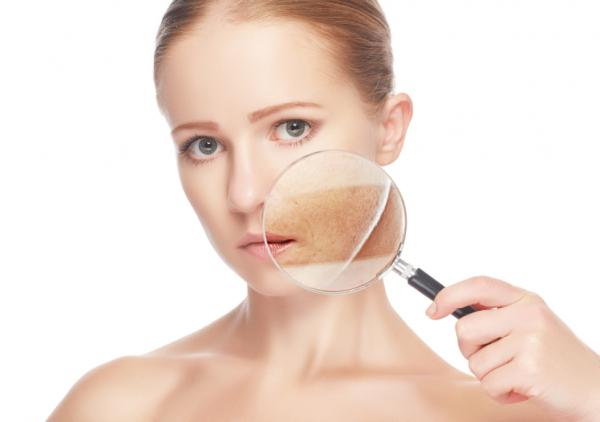 Algunos tipos de manchas en la piel y cómo tratarlas