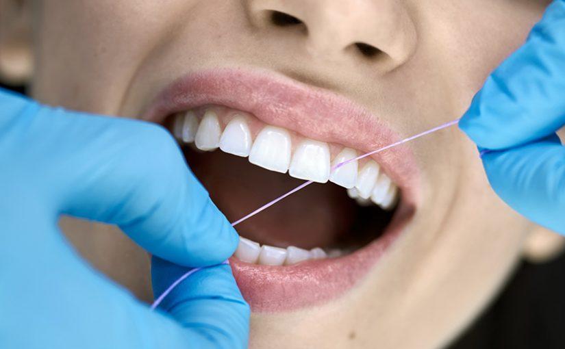 usos del hilo dental
