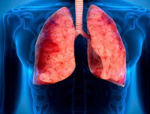 síntomas de la pulmonía