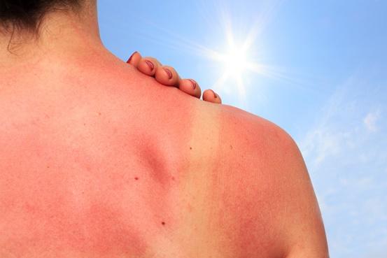 quemaduras del sol