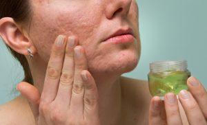 granos en la cara y cicatrices