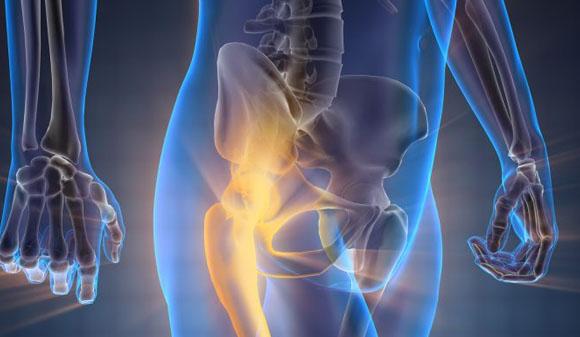 salud ósea y que debes saber
